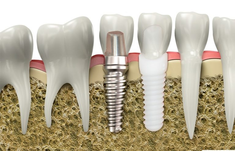The Benefits of Using Metal Free Implants